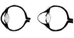תרשים של חתך בעין קרטוקונית מימין ועין נורמלית משמאל.
