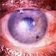 דלקות עיניים | טיפול מומלץ לדלקת בעין