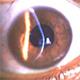 מחלות עיניים לפי סדר האלף בית