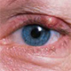 מחלות עיניים שכיחות ונפוצות