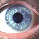 מחלות עיניים