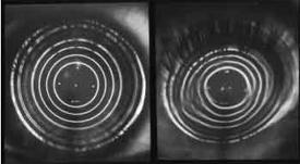 צלום טבעות האור של מכשיר הקרטוסקוף המוקרנות על פני הקרנית. מימין-קרנית קרטוקונית עם טבעות אור מעוותות. משמאל-קרנית תקינה עם טבעות אור עגולות וסדירות.