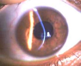 צלום עין קרטוקונית במנורת סדק. ניתן לראות כי לאלומת האור הצרה על פני הקרנית צורת קשת מעוותת עם התרוממות וקמירות יתר בחלק התחתון.